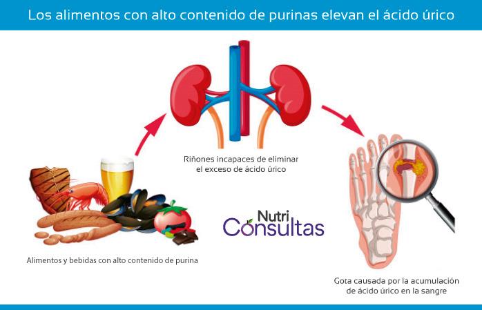 Ácido úrico: alimentos altos en purinas elevan el ácido úrico en el cuerpo