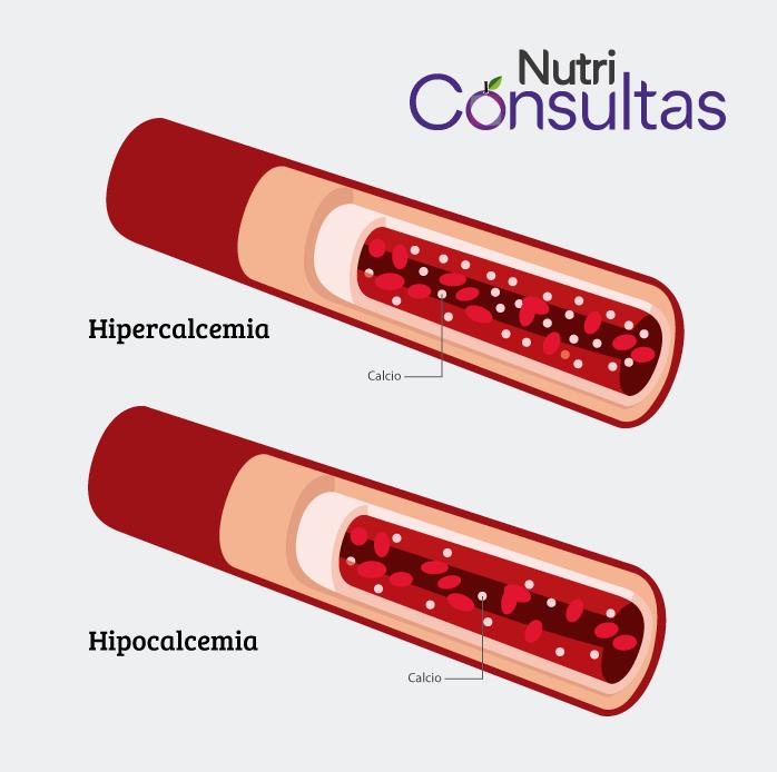 Nivel de calcio en la sangre: hipercalcemia e hipocalcemia