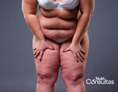 Deficiencia de vitamina B6: obesidad