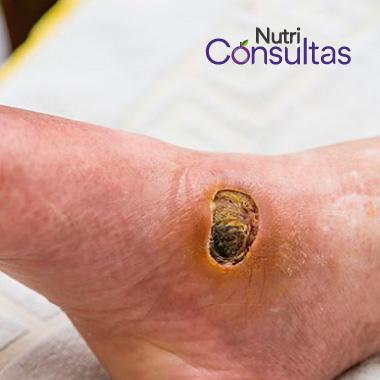 La nutrición en la curación de heridas: úlcera de pie diabético