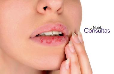 Vitamina B6: deficiencia, causa de labios agrietados