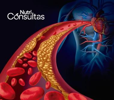Función de la vitamina B12: deficiencia de vitamina B12, nivel de triglicéridos alto