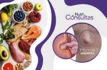 Dieta de la hernia epigástrica